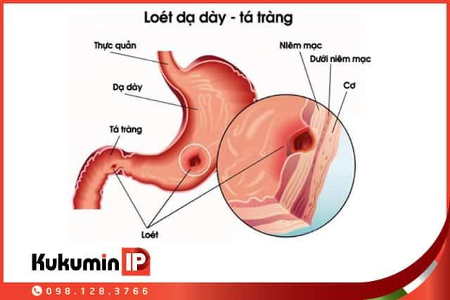 Sự khác nhau giữa loét dạ dày và loét tá tràng4