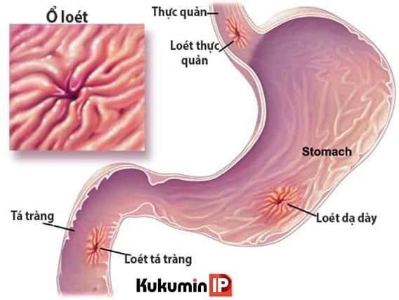 dấu hiệu đau dạ dày, đau dạ dày, bệnh dạ dày