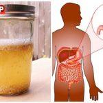 Lưu ý gì khi điều trị loét dạ dày tá tràng