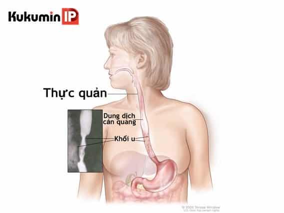 ung thu thuc quan (7) các dấu hiệu ung thư thực quản, ung thư thực quản, nhận biết ung thư thực quản sớm nhất, các phòng bệnh ung thư thực quản