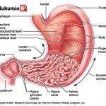 Viêm loét hang vị dạ dày, nguyên nhân và triệu chứng