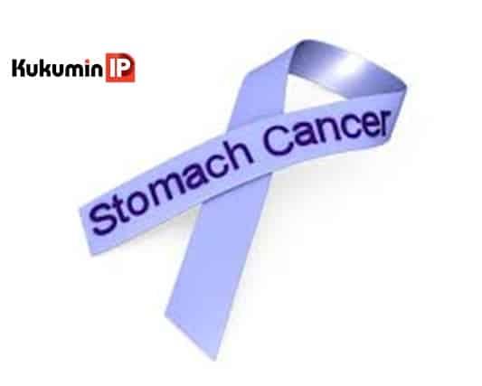 ung thư dạ dày, ung thư dạ dày thời kỳ đầu, triệu chứng ung thư dạ dày,