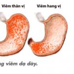 Viêm dạ dày xuất huyết