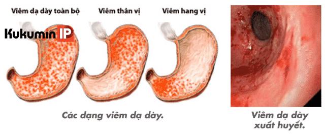 Viêm dạ dày xuất huyết,