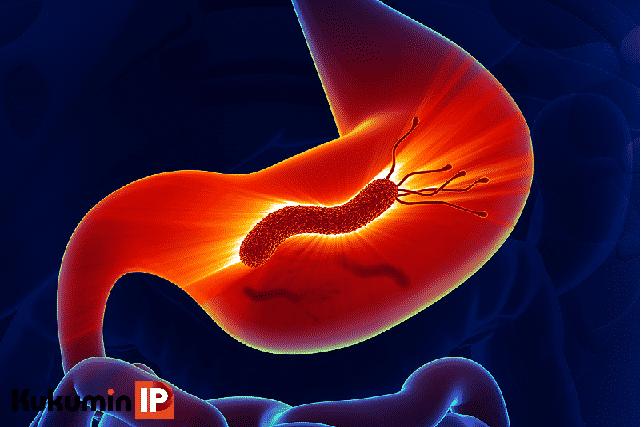 vi khuẩn Hp, Hp, H.pylori, Helicobacter pylori, viêm loét dạ dày, ung thư dạ dày, Kukumin IP