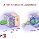 Vi khuẩn Hp – sát thủ lặng lẽ và những biến chứng nguy hiểm