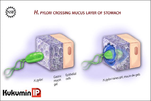 Vi khuẩn H.pylori gây viêm loét, Vi khuẩn Hp, nhiễm Hp, viêm loét dạ dày, ung thư dạ dày, Helicobacter pylori, H.pylori