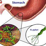 Vi khuẩn HP gây viêm loét, ung thư dạ dày và Curcumin Phytosome