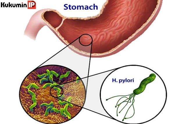 ung thư dạ dày, viêm loét dạ dày