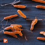Nhiễm Hp (Helicobacter pylori, H.pylori) có nguy hiểm không?