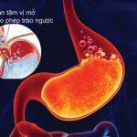 Tại sao bệnh trào ngược dạ dày thực quản hay tái phát