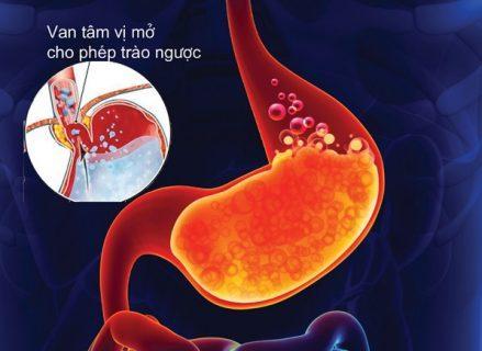 Những người bị trào ngược dạ dày thực quản mãn tính có thể có nguy cơ bị Barrett thực quản