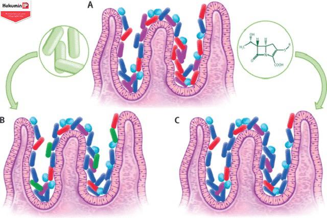 vi khuẩn ruột giúp cải thiện trào ngược dạ dày thực quản