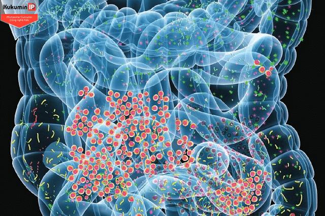 vi khuẩn ruột cho người viêm loét dạ dày nặng