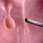 Polyp dạ dày – có thực sự cần lo lắng quá