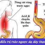 Thuốc chữa trào ngược dạ dày thực quản và cách dùng