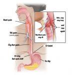 Trào ngược thanh quản, triệu chứng, chẩn đoán và điều trị