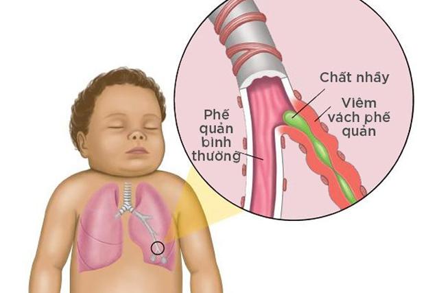 Hen suyễn và trào ngược
