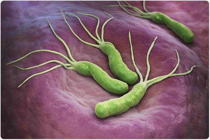 Hình vi khuẩn H pylori bám dính vào niêm mạc dạ dày ở người nhiễm vi khuẩn H pylori