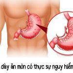 Viêm dạ dày ăn mòn, triệu chứng, và điều trị