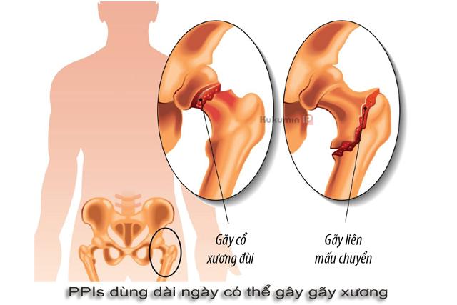tác dụng phụ PPIs gây gãy xương
