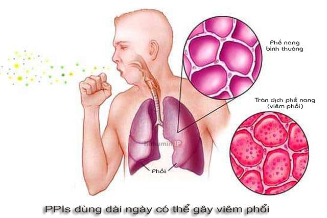 tác dụng phụ PPIs gây viêm phổi