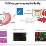 Vai trò của Helicobacter pylori trong ung thư dạ dày – phần 3