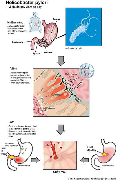 Helicobacter pylori gây ung thư gây viêm dạ dày