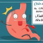 Chẩn đoán và cấp cứu xuất huyết tiêu hóa cao